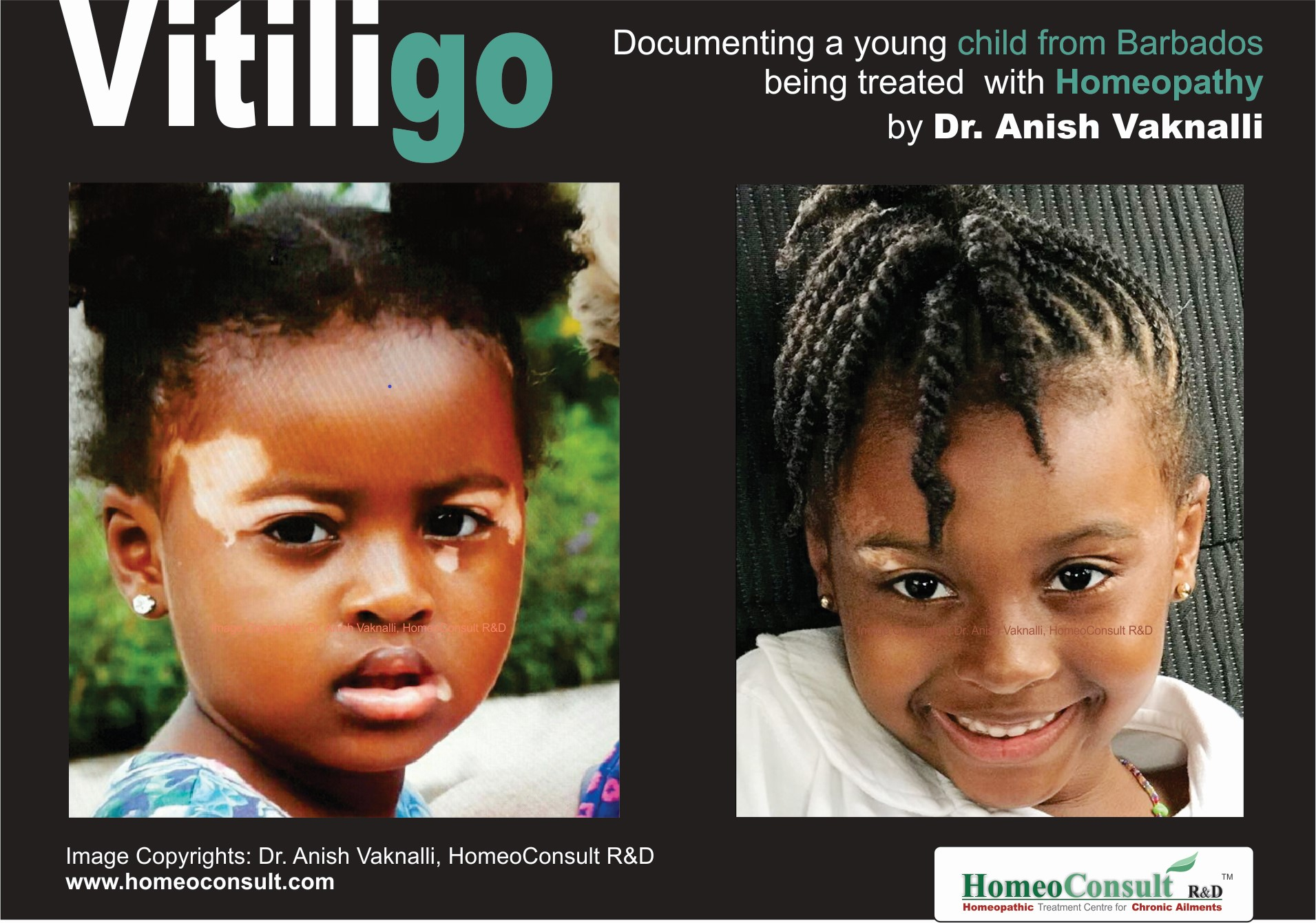 Vitiligo and Homeopathic Treatment | Clever H  - the Mag!